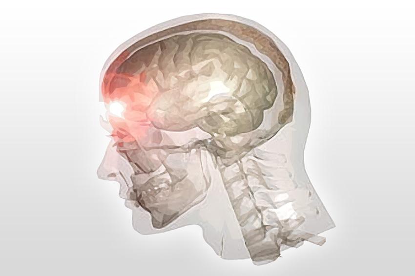 traumatism cerebral afectiuni psihiatrice